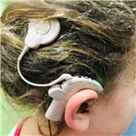 Cochlear Implant (CI)
